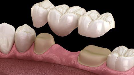Dental Bridge vs Dental Implants