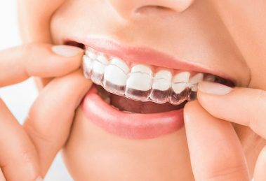 Invisible aligners for teeth