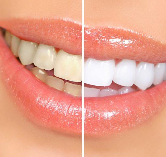 Best Dentist for Cosmetic Dental