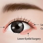 Epicanthoplasty and Lateral canthoplasty