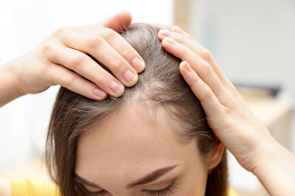 losing hair